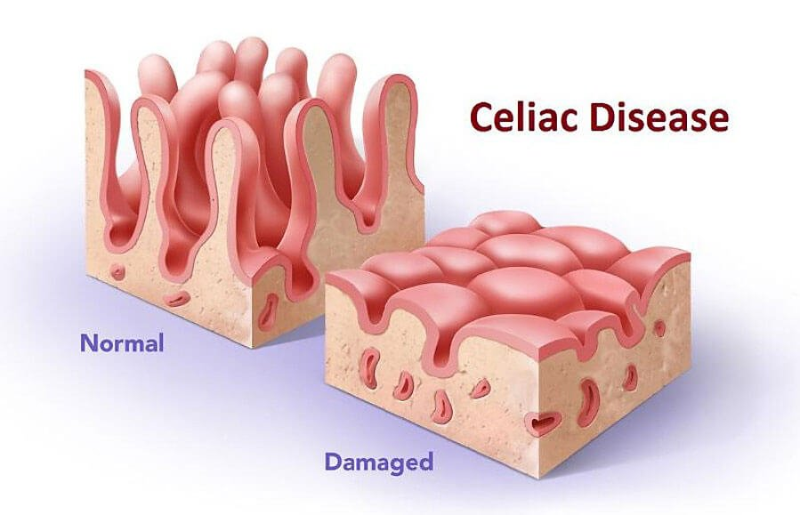 Resources and Information on Celiac Disease