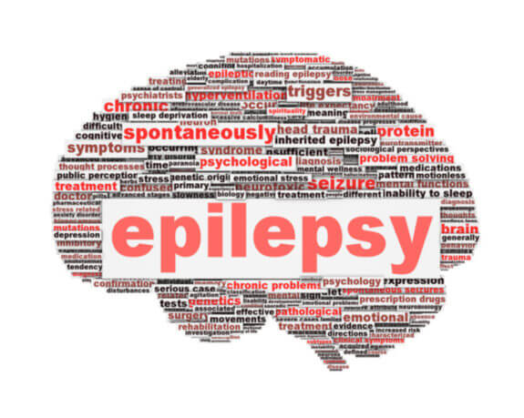 Top 5 Alternative Treatments for Epilepsy